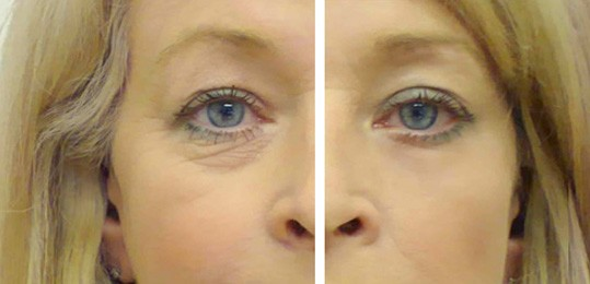 The Two Main Types of Wrinkle Treatments